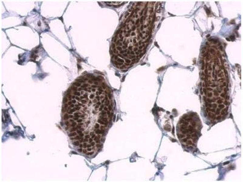 Immunohistochemistry (Paraffin-embedded Sections) (IHC (p)) image for anti-serine/arginine-Rich Splicing Factor 1 (SRSF1) (Center) antibody (ABIN4353084)