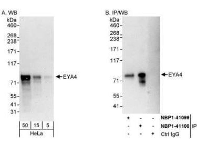 Western Blotting (WB) image for anti-Eyes Absent Homolog 4 (Drosophila) (EYA4) (AA 100-150) antibody (ABIN445455)