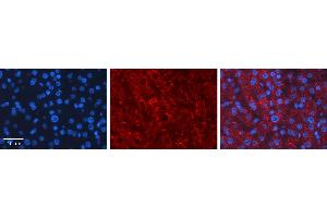 Image no. 2 for anti-Lecithin-Cholesterol Acyltransferase (LCAT) (C-Term) antibody (ABIN2776942)