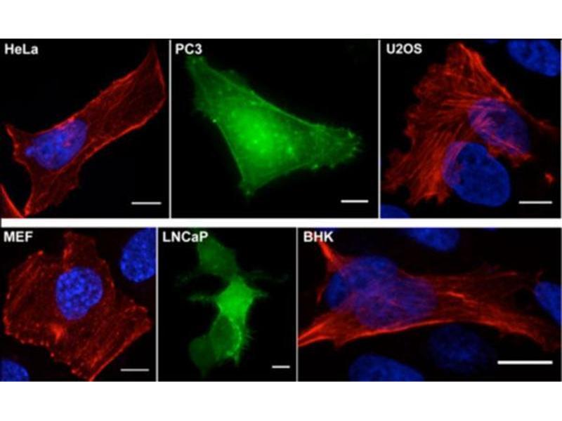 Actin Chromobody Staining Example