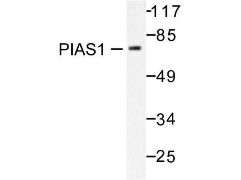 Western Blotting (WB) image for anti-Protein Inhibitor of Activated STAT, 1 (PIAS1) antibody (ABIN407959)