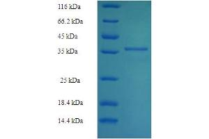 Image no. 1 for PDZ and LIM Domain 7 (Enigma) (PDLIM7) (AA 185-386) protein (His-SUMO Tag) (ABIN5710742)