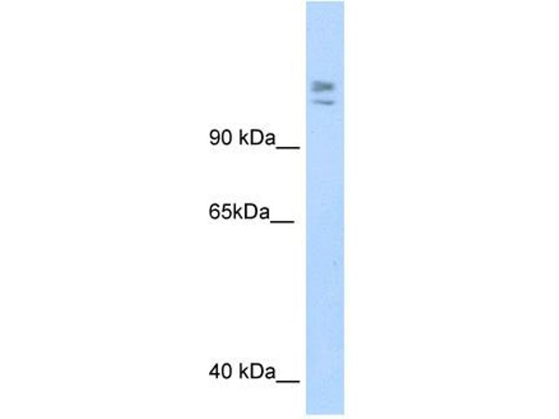 Western Blotting (WB) image for anti-Myb-Binding Protein 1A (MYBBP1A) (C-Term) antibody (ABIN2780004)