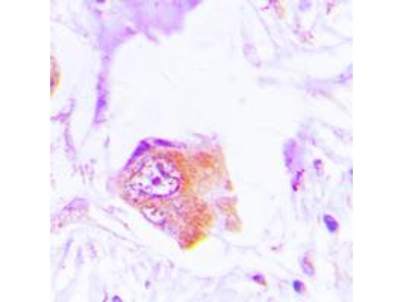 Immunohistochemistry (IHC) image for anti-Neutrophil Cytosol Factor 1 (NCF1) (C-Term) antibody (ABIN2705087)