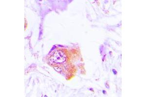 Immunohistochemistry (IHC) image for anti-NCF1 antibody (Neutrophil Cytosol Factor 1) (C-Term) (ABIN2705087)