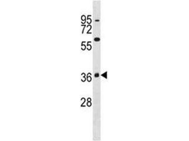 Western Blotting (WB) image for anti-MAPK11 antibody (Mitogen-Activated Protein Kinase 11) (AA 334-359) (ABIN3031829)