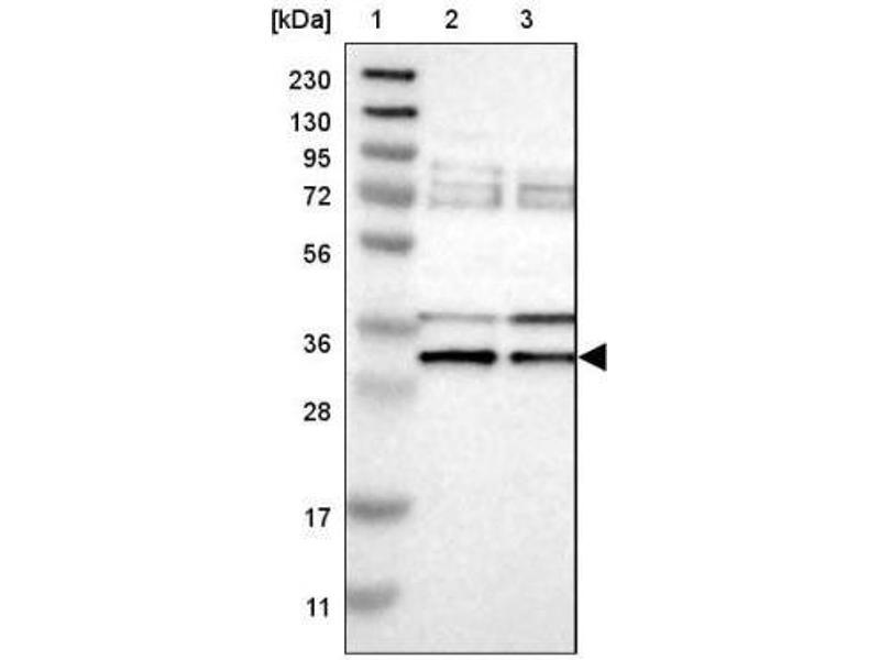 Western Blotting (WB) image for anti-RNA Binding Motif Protein 7 (RBM7) antibody (ABIN4349639)
