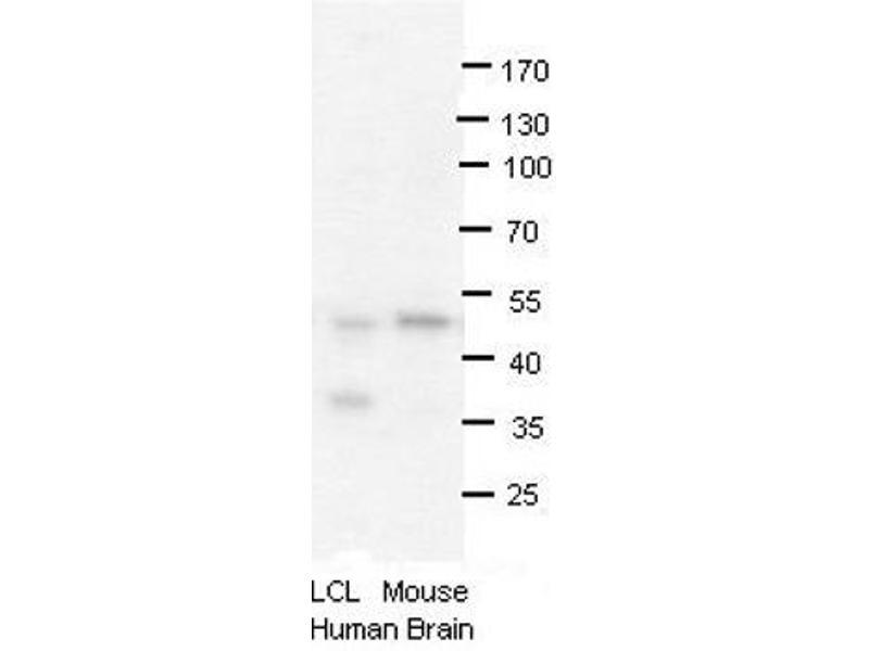 Western Blotting (WB) image for anti-Protein Arginine Methyltransferase 2 (PRMT2) (N-Term) antibody (ABIN2778663)