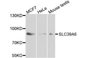 Image no. 1 for anti-Solute Carrier Family 39 (Zinc Transporter), Member 6 (SLC39A6) antibody (ABIN1682784)