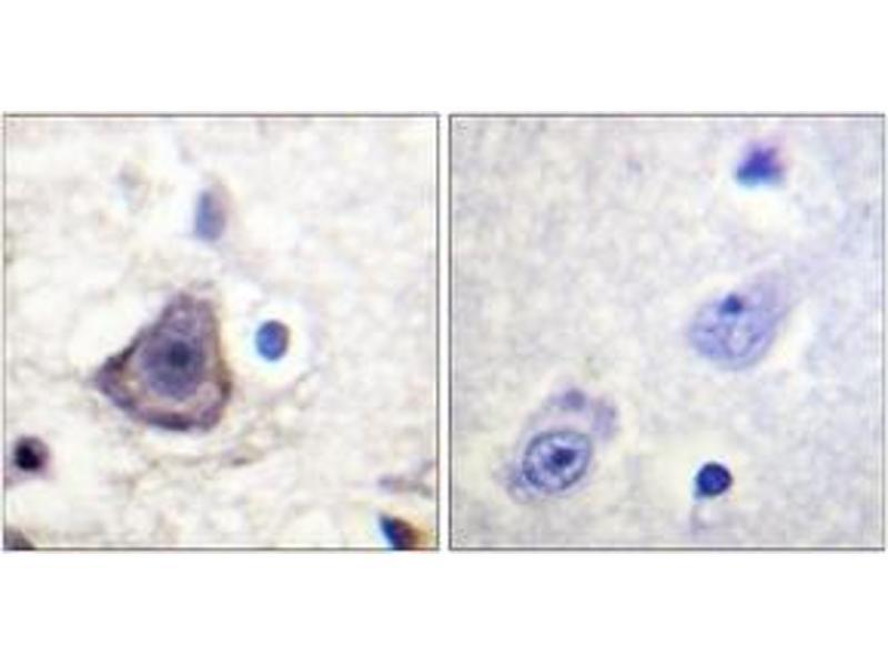 Immunohistochemistry (IHC) image for anti-ERBB3 Antikörper (V-Erb-B2 Erythroblastic Leukemia Viral Oncogene Homolog 3 (Avian)) (pTyr1222) (ABIN1531609)
