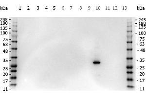 Image no. 1 for anti-Red Fluorescent Protein (RFP) antibody (ABIN129578)