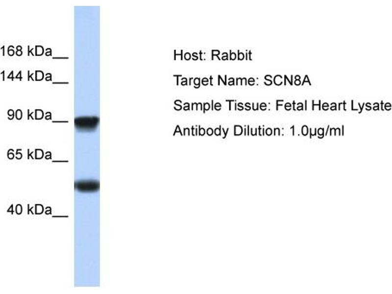 Western Blotting (WB) image for anti-Sodium Channel, Voltage-Gated, Type VIII, alpha (SCN8A) (C-Term) antibody (ABIN2776200)