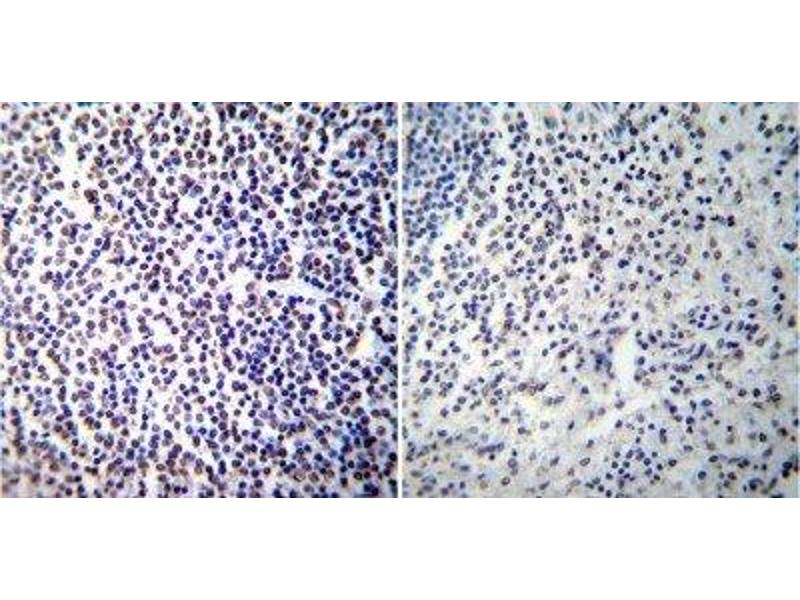 Immunohistochemistry (Paraffin-embedded Sections) (IHC (p)) image for anti-Nuclear Factor of Activated T-Cells, Cytoplasmic, Calcineurin-Dependent 2 (NFAT1) antibody (ABIN152663)