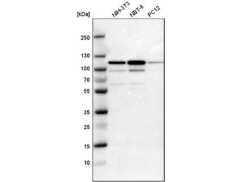 Western Blotting (WB) image for anti-Signal Transducer and Activator of Transcription 6, Interleukin-4 Induced (STAT6) antibody (ABIN4356445)