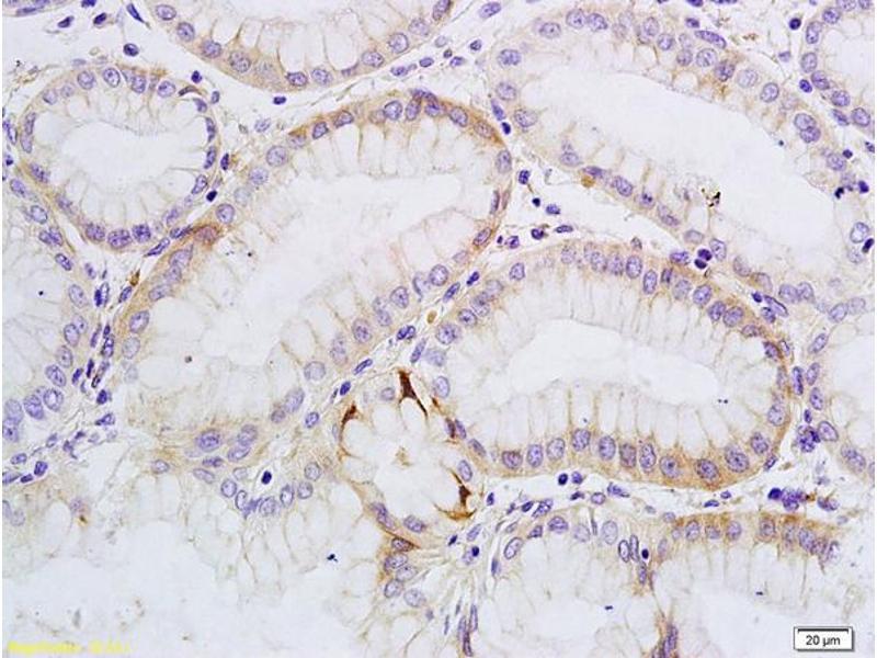 Immunohistochemistry (IHC) image for anti-SATB Homeobox 1 (SATB1) (AA 700-750) antibody (ABIN732008)