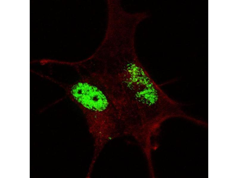 Immunofluorescence (IF) image for anti-SRY (Sex Determining Region Y)-Box 2 (SOX2) antibody (ABIN1882277)