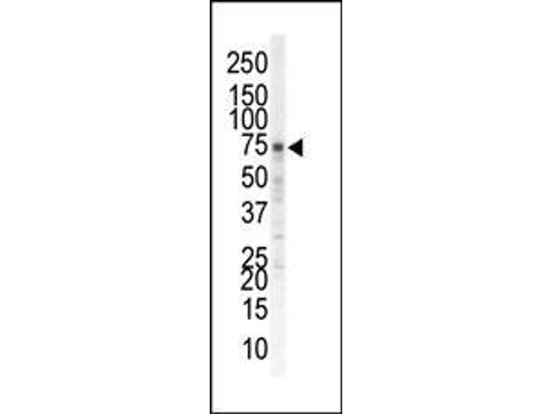 Western Blotting (WB) image for anti-EPH Receptor A5 (EPHA5) (N-Term) antibody (ABIN359797)