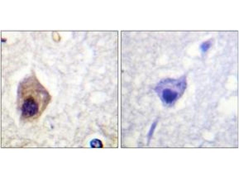 Immunohistochemistry (IHC) image for anti-Caspase 1 (CASP1) (AA 342-391) antibody (ABIN1532666)