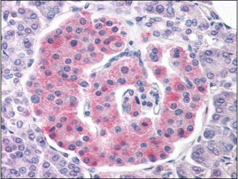 Immunohistochemistry (Paraffin-embedded Sections) (IHC (p)) image for anti-Potassium Inwardly-Rectifying Channel, Subfamily J, Member 11 (KCNJ11) (Internal Region) antibody (ABIN614945)
