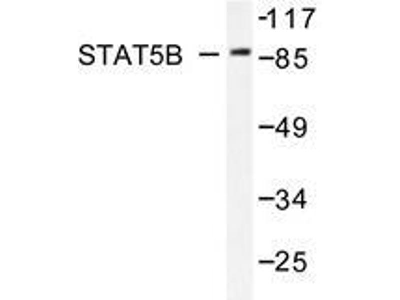 Western Blotting (WB) image for anti-STAT5B antibody (Signal Transducer and Activator of Transcription 5B) (ABIN498182)