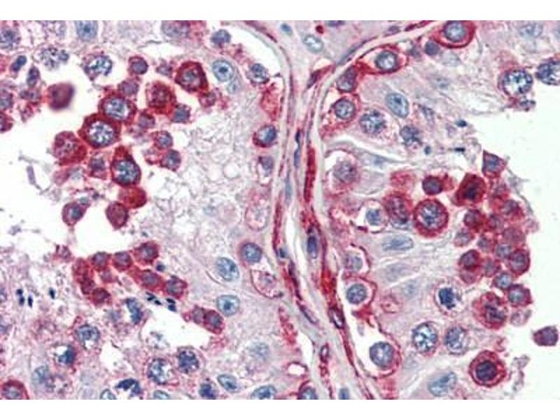 Immunohistochemistry (Paraffin-embedded Sections) (IHC (p)) image for anti-Discs, Large Homolog 4 (Drosophila) (DLG4) (C-Term) antibody (ABIN396947)