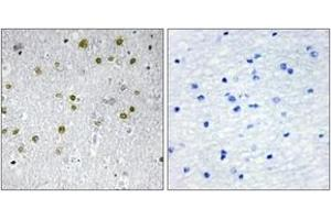 Image no. 1 for anti-Nuclear Receptor Interacting Protein 2 (NRIP2) (AA 1-50) antibody (ABIN1534090)