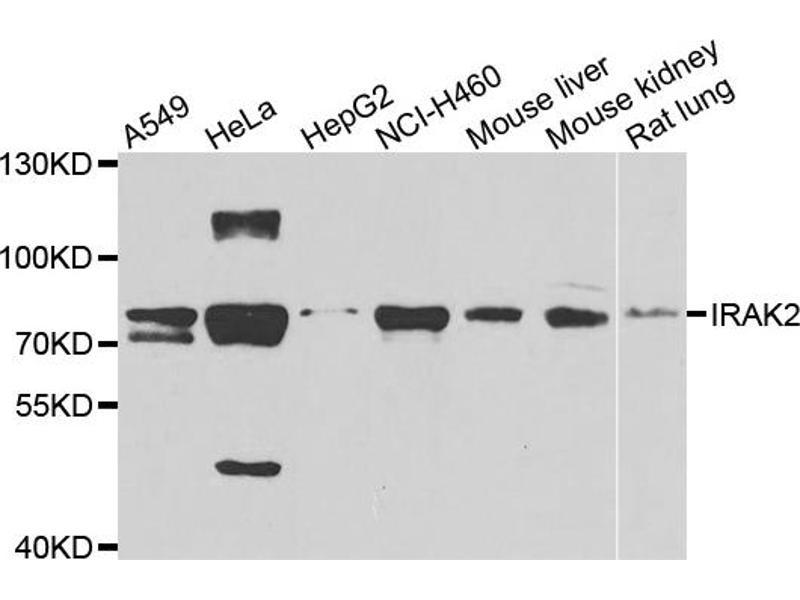 Western Blotting (WB) image for anti-Interleukin-1 Receptor-Associated Kinase 2 (IRAK2) antibody (ABIN6570586)