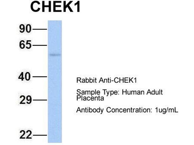 Western Blotting (WB) image for anti-Checkpoint Kinase 1 (CHEK1) (Middle Region) antibody (ABIN2779737)