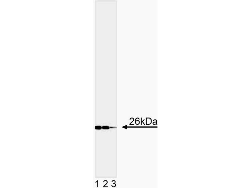 Western Blotting (WB) image for anti-BCL2 antibody (B-Cell CLL/lymphoma 2) (AA 41-54) (ABIN967321)