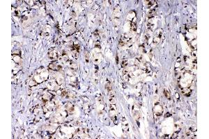 Image no. 5 for anti-Mediator Complex Subunit 9 (MED9) (AA 55-146) antibody (ABIN5519032)