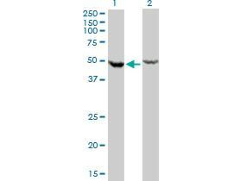 Western Blotting (WB) image for anti-DEAD (Asp-Glu-Ala-Asp) Box Polypeptide 6 (DDX6) (AA 1-484) antibody (ABIN394255)