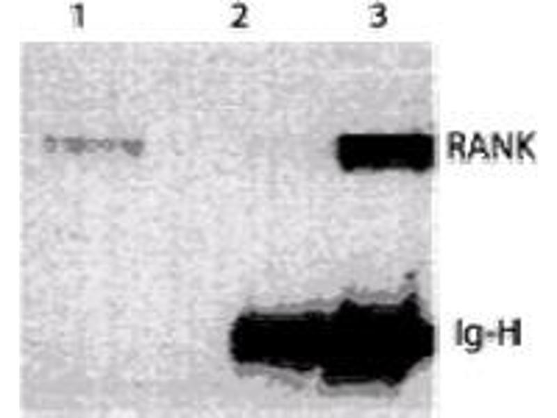Western Blotting (WB) image for anti-TNFRSF11A antibody (Tumor Necrosis Factor Receptor Superfamily, Member 11a, NFKB Activator) (Extracellular Domain) (ABIN121294)