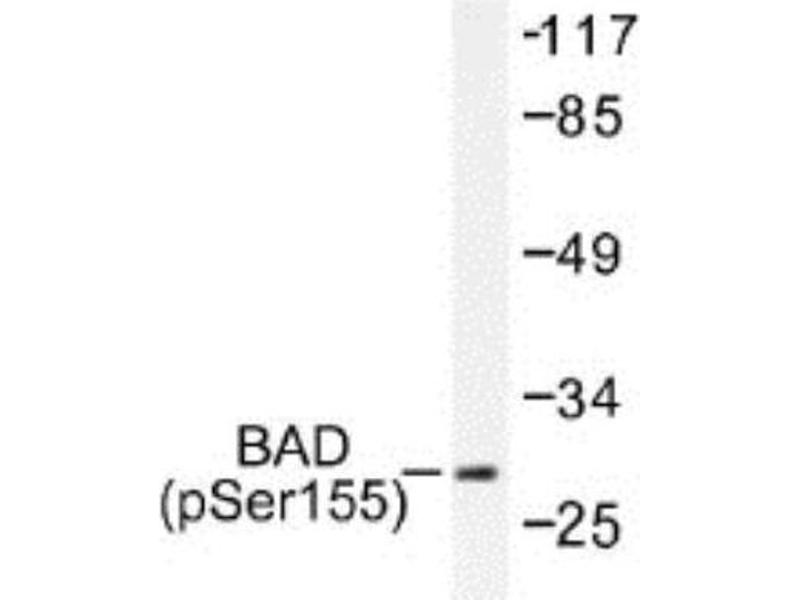 Western Blotting (WB) image for anti-BCL2-Associated Agonist of Cell Death (BAD) (pSer155) antibody (ABIN4282853)
