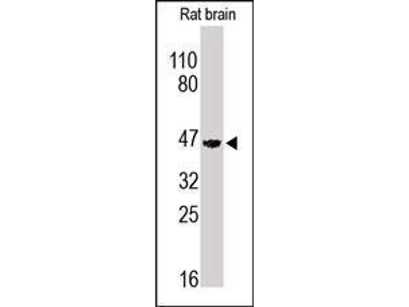 Western Blotting (WB) image for anti-Adrenergic, beta-2-, Receptor, Surface (ADRB2) (Middle Region) antibody (ABIN1585587)
