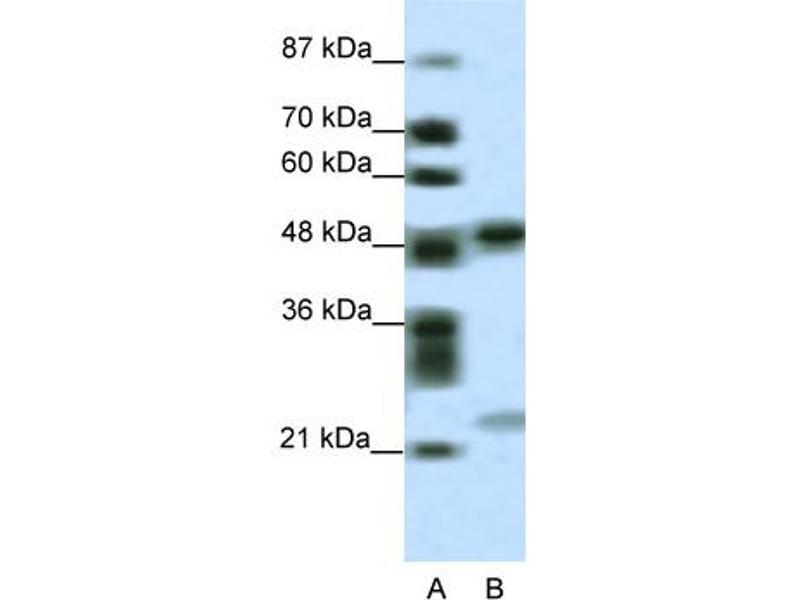Western Blotting (WB) image for anti-PHD Finger Protein 11 (PHF11) (Middle Region) antibody (ABIN2776050)