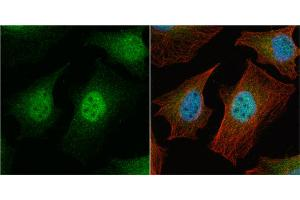 Image no. 4 for anti-Baculoviral IAP Repeat-Containing 5 (BIRC5) (C-Term) antibody (ABIN2857039)