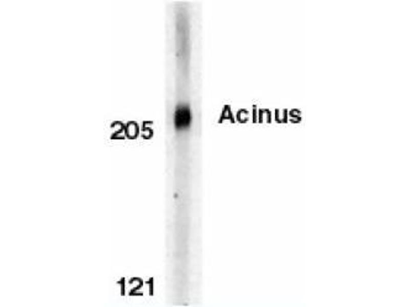 image for anti-ACIN1 antibody (Apoptotic Chromatin Condensation Inducer 1) (C-Term) (ABIN319025)