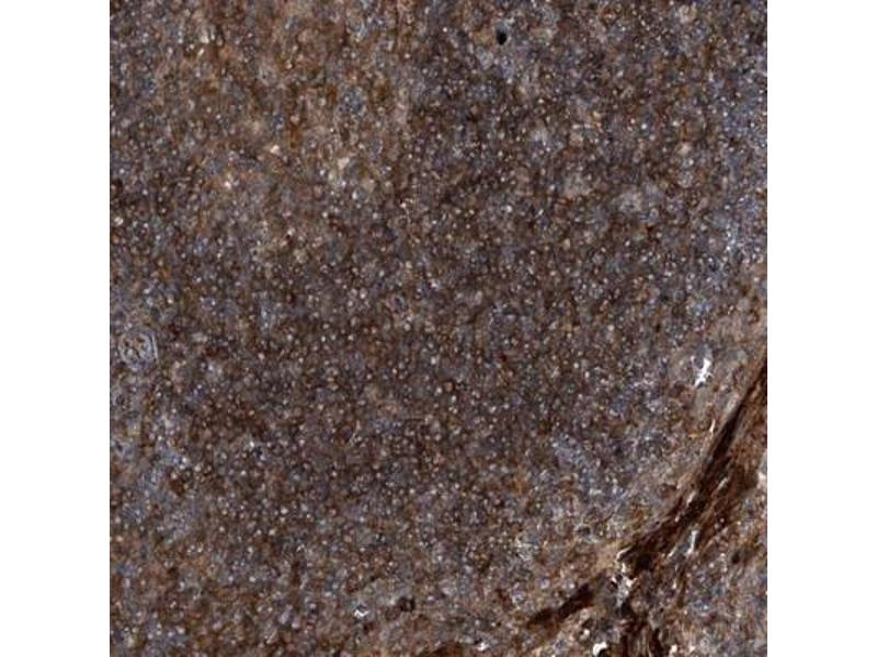 Immunohistochemistry (IHC) image for anti-Mitogen-Activated Protein Kinase Associated Protein 1 (MAPKAP1) antibody (ABIN4353814)