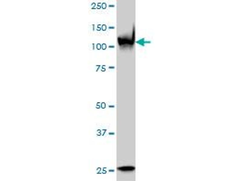 Western Blotting (WB) image for anti-Poly (ADP-Ribose) Polymerase 1 (PARP1) (AA 1-100), (partial) antibody (ABIN559798)
