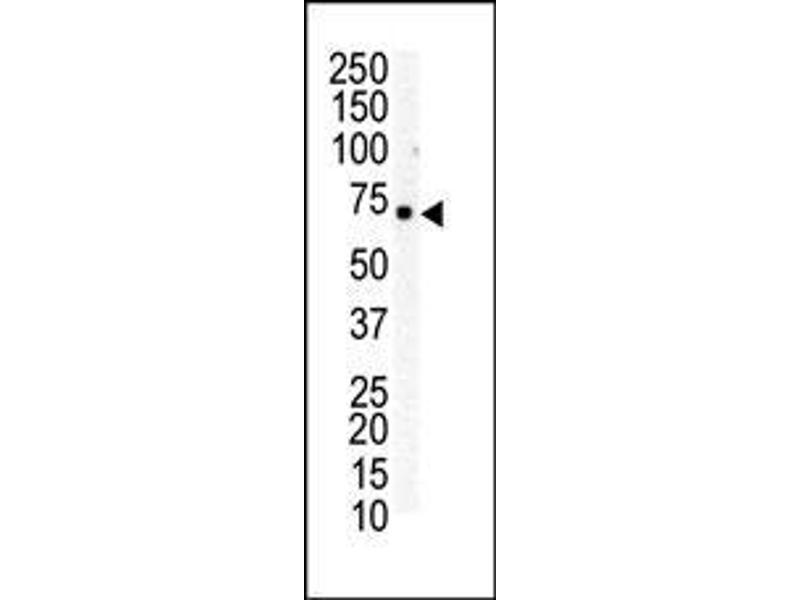 Western Blotting (WB) image for anti-EPH Receptor B6 antibody (EPHB6) (AA 990-1021) (ABIN391928)