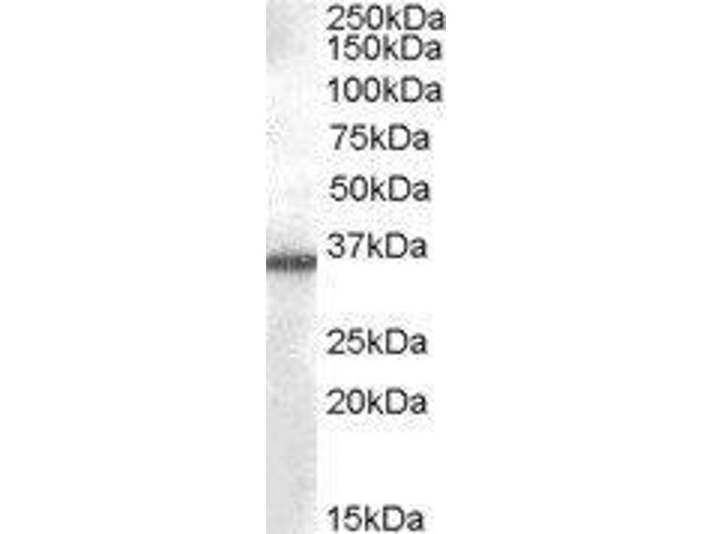 Western Blotting (WB) image for Aldo-Keto Reductase Family 1, Member B10 (Aldose Reductase) (AKR1B10) peptide (ABIN369716)