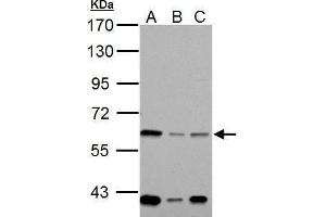 Western Blotting (WB) image for anti-NADPH Oxidase 1 (NOX1) (Center) antibody (ABIN2855720)