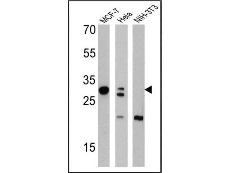 Western Blotting (WB) image for anti-Galectin 3 antibody (Lectin, Galactoside-Binding, Soluble, 3) (ABIN152697)