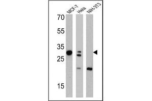 Western Blotting (WB) image for anti-Lectin, Galactoside-Binding, Soluble, 3 (LGALS3) antibody (ABIN152697)