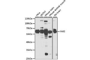 Image no. 1 for anti-Tyrosyl-tRNA Synthetase (Yars) antibody (ABIN2560805)