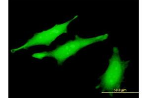 Immunofluorescence (IF) image for anti-Ribonucleotide Reductase M2 B (TP53 Inducible) (RRM2B) (AA 3-84), (partial) antibody (ABIN565482)