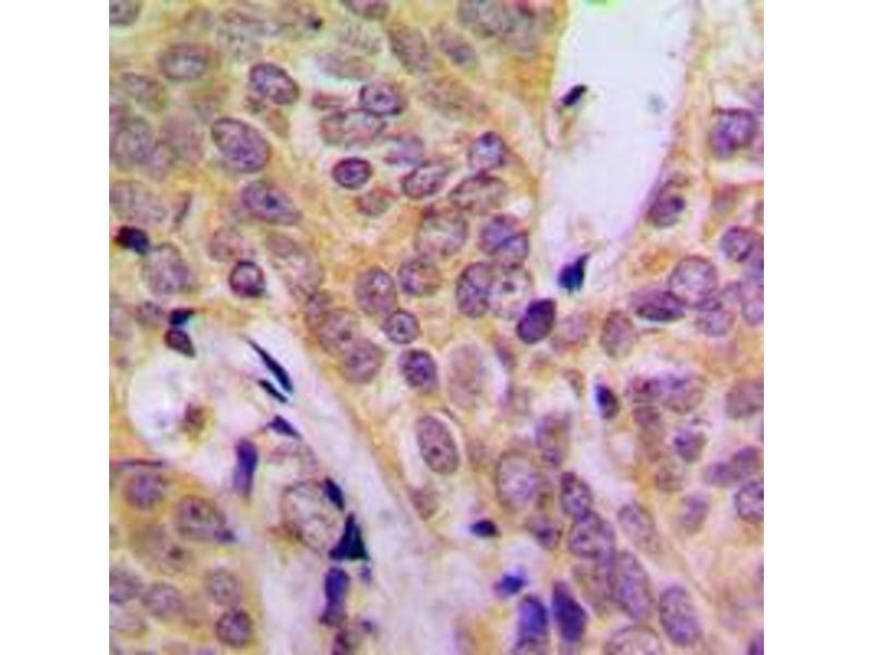 Immunohistochemistry (IHC) image for anti-V-Src Sarcoma (Schmidt-Ruppin A-2) Viral Oncogene Homolog (Avian) (SRC) (C-Term) antibody (ABIN2704557)