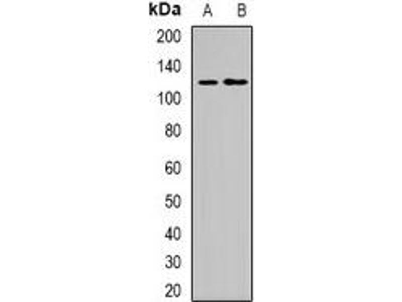 Western Blotting (WB) image for anti-Progesterone Receptor (PGR) antibody (ABIN2957735)