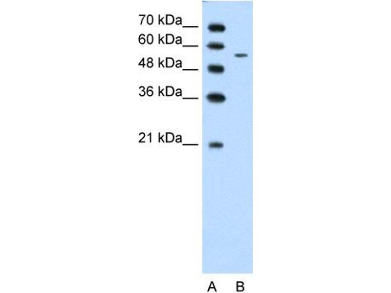 Western Blotting (WB) image for anti-Carbohydrate (N-Acetylglucosamine 6-O) Sulfotransferase 7 (CHST7) (Middle Region) antibody (ABIN310184)