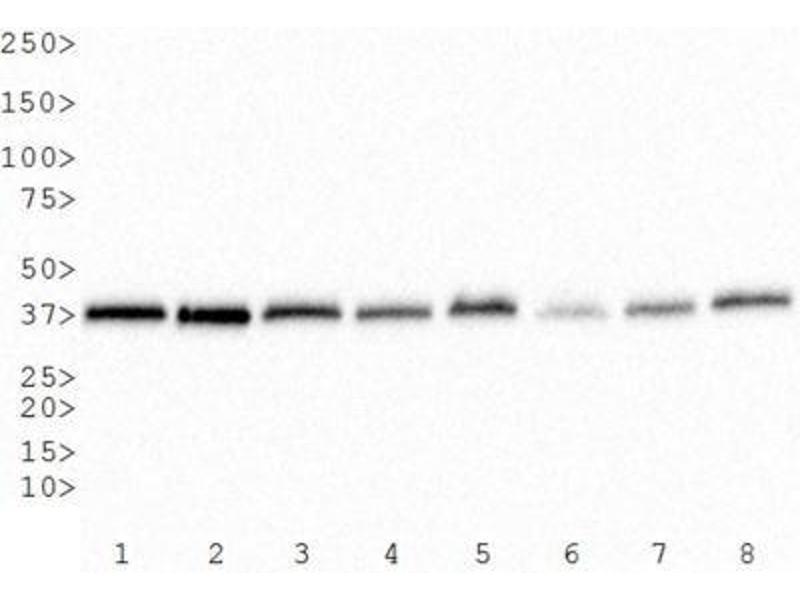 Western Blotting (WB) image for anti-GAPDH antibody (Glyceraldehyde-3-Phosphate Dehydrogenase) (ABIN153387)